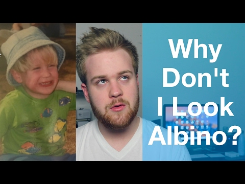 Why I Don't Look ALBINO But Do Have ALBINISM!