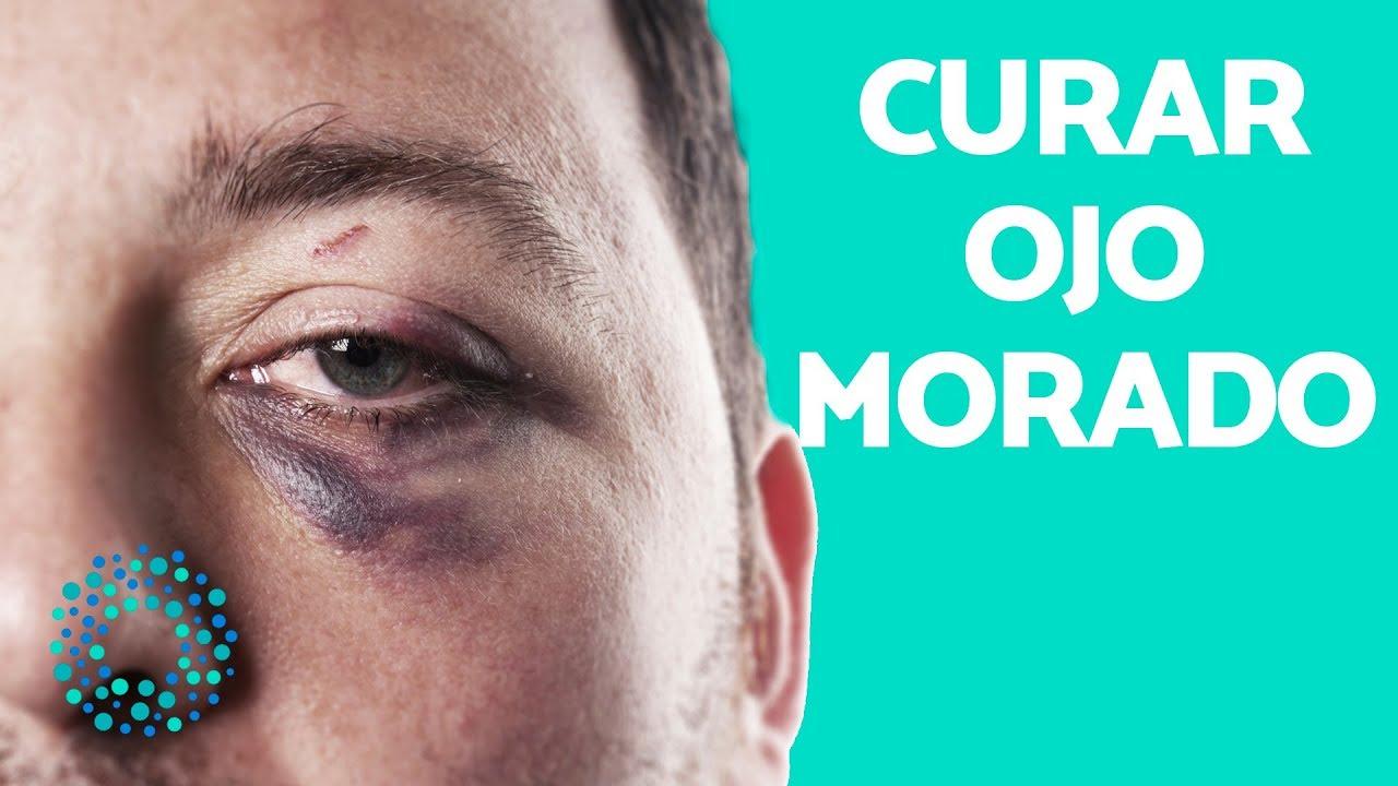 pomada para quitar moretones en los ojos