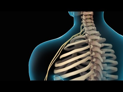 Neck Pain | Cervical Disc Injury | Nucleus Health