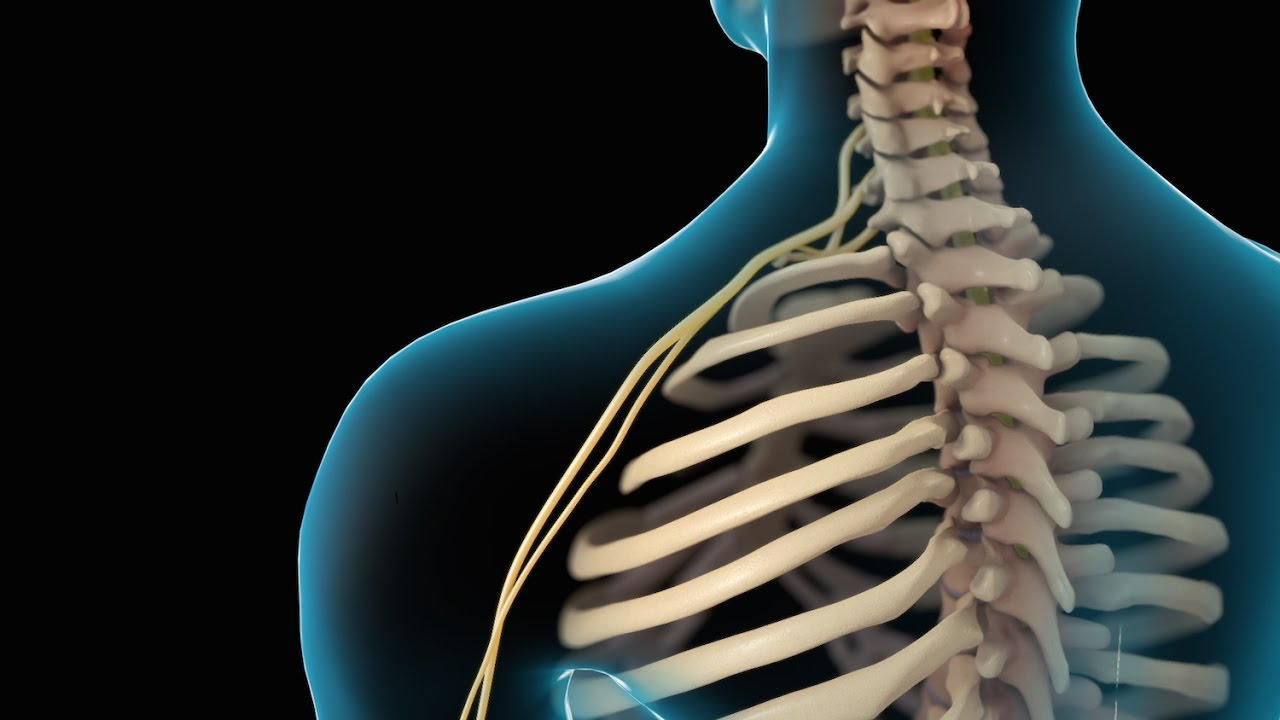 Neck Pain | Cervical Disc Injury | Nucleus Health - YouTube
