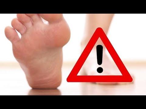 Parliamo di piede diabetico e diabete