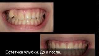 Лечение на брекет системе без удаления