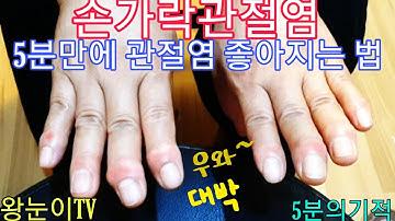 196. 손가락관절염, 손가락통증, 류마티스관절염  바로 좋아지는 방법. 누구나 따라하세요. 문문칩.대리점문의010-2723-1661