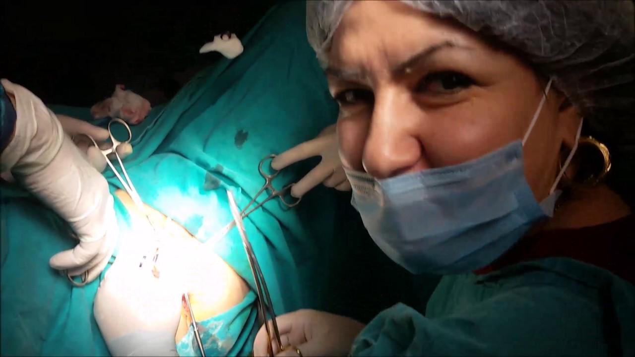 Vaginoplastika, arxa kolporrafiya, perineoplastika