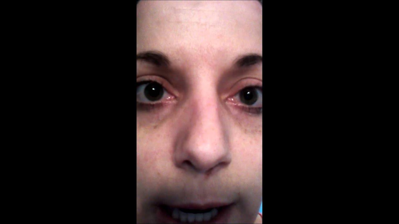 Синдром Эйди
