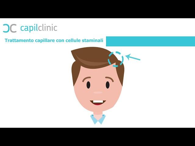 Trattamento delle cellule staminali -con Capilclinic e Dr Oguz Kayiran