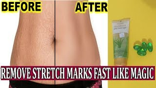Get Rid of Pregnancy Stretch Marks Just in 2 Weeks | Remove Stretch Marks Fast and Easily