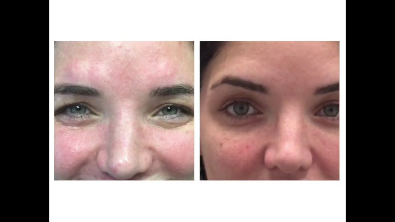 Brow Lift Shape With Botox In West La At Skin Specifics Med Spa