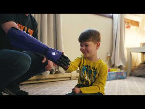 Children's Camp Counselor Gets Bionic Arm 'straight out of the future'