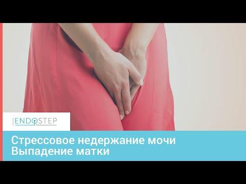 Лечение стрессового недержания мочи у женщин