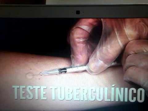 PPD, teste tubérculinico ou reação de mantoux
