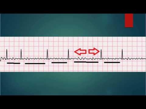 ECG Basics A fib