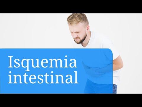 Isquemia intestinal. Información general sobre el infarto intestinal