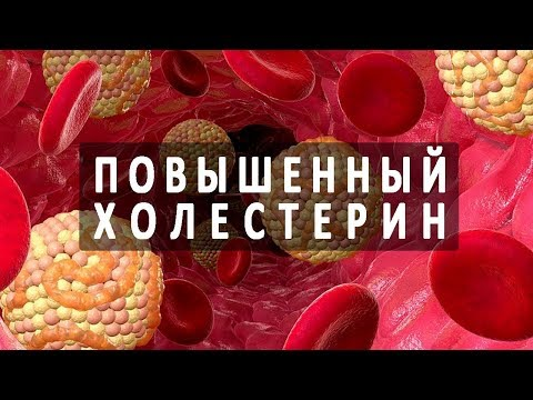 Норма холестерина в крови. Липидный обмен веществ