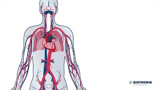 Aufbau und Funktion des Herz-Kreislauf-Systems (Film 1 BIOTRONIK) - Animation Medizin