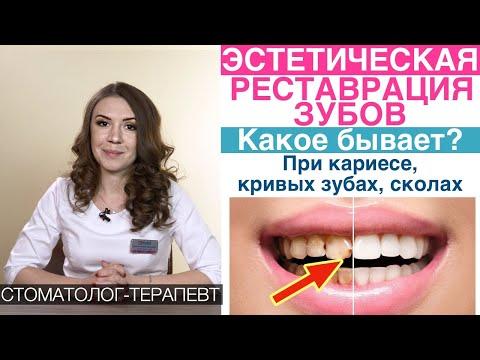 Эстетическая реставрация передних зубов - что это, какое бывает, когда делать и подготовка!