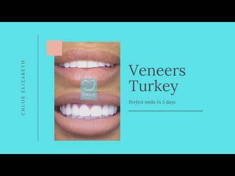 VENEERS TURKEY: CHLOE ELIZABETH REVIEW (2019)