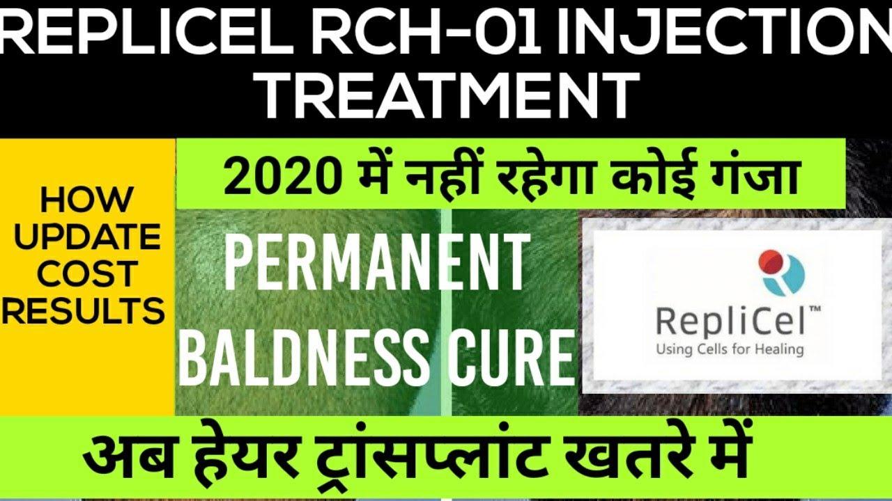 REPLICEL RCH-01 INJECTION एक इंजेक्शन मे पूरा सिर बालों से भर जाएगा | कॉस्ट  | रिजल्ट्स