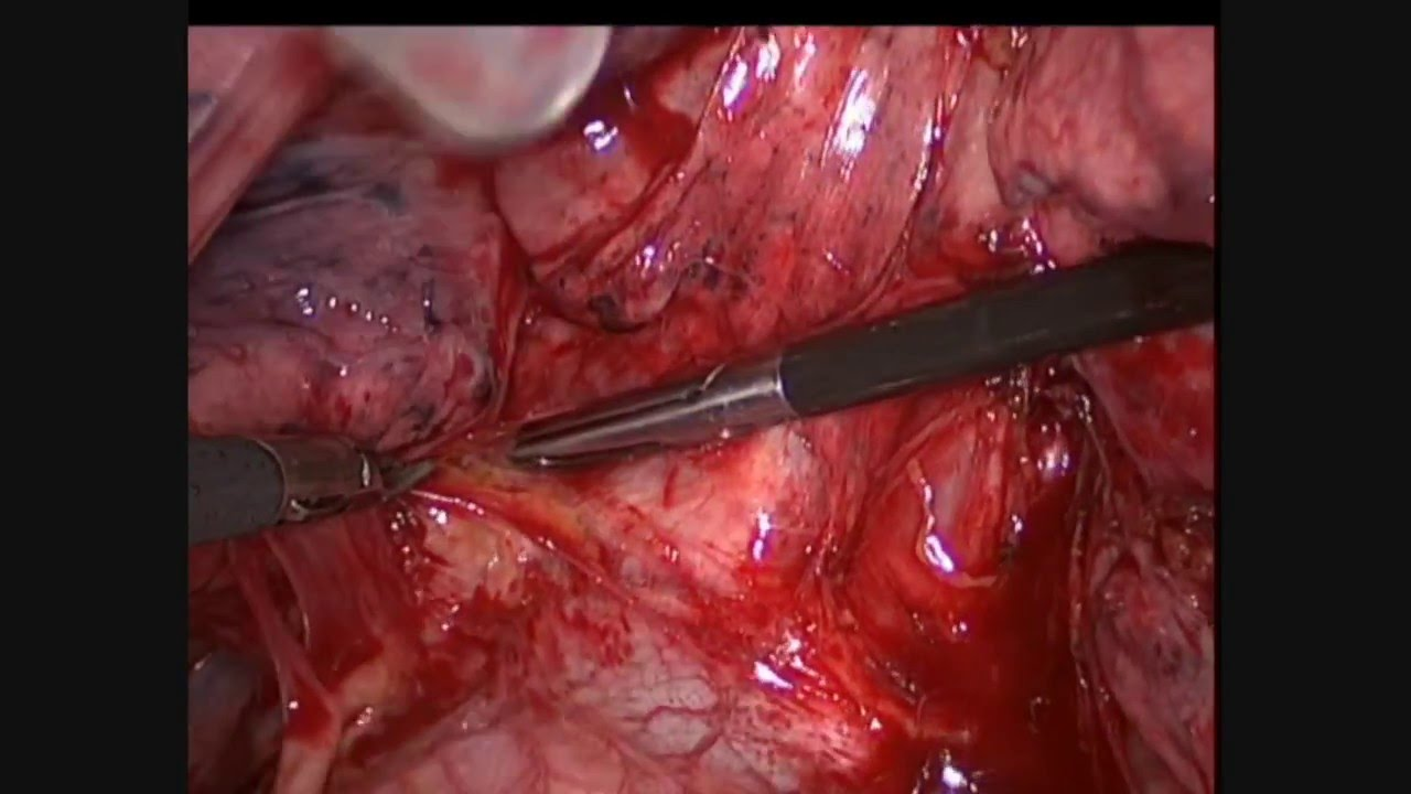 Andrea Droghetti - VATS Lobectomy left upper lobe and Thoracectomy