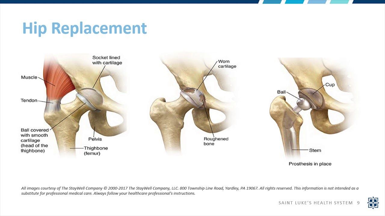 Total Knee Replacement | Saint Luke's Health System