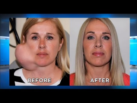 UPDATE: Large Facial Tumor Removal, Parotid Gland: The Doctors TV Show