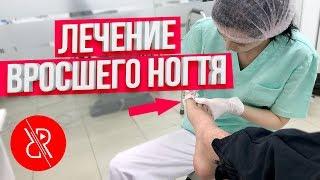 ВРОСШИЙ НОГОТЬ НА НОГЕ   Лечение вросшего ногтя. Как избавиться или удалить вросший ноготь (Бишкек)
