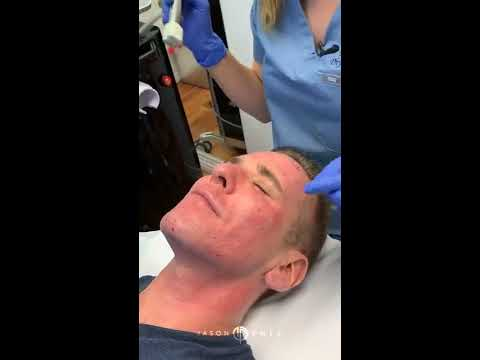 Fractora Treatment for Facial Rejuvenation | Microneedling RF | Dr. Jason Emer