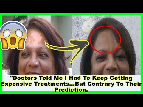 How I Cured My Vitiligo Permanently and Naturally In Just 2 Months ? Mp3