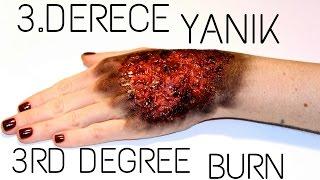3.Derece Yanık (3rd Degree Burn) FX Videosu Ⅰ Aslı Özdel