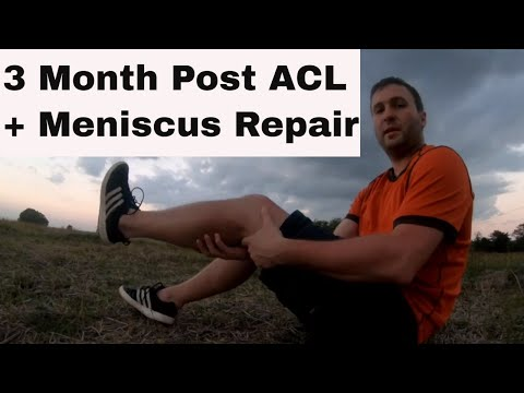 3-month-post-acl-reconstruction-surgery-and-meniscus-repair