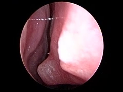 Very Acute Spur with Deviated Nose Septum on Nose Endoscopy