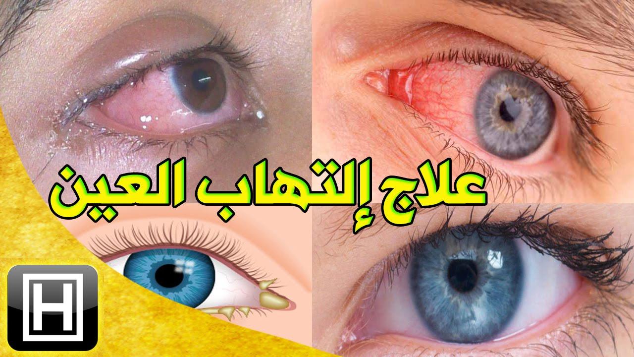 علاج إلتهاب العيون طبيعيا والتخلص من العمش وإحمرار العين في المنزل بأرخص وأسهل طريقة Youtube