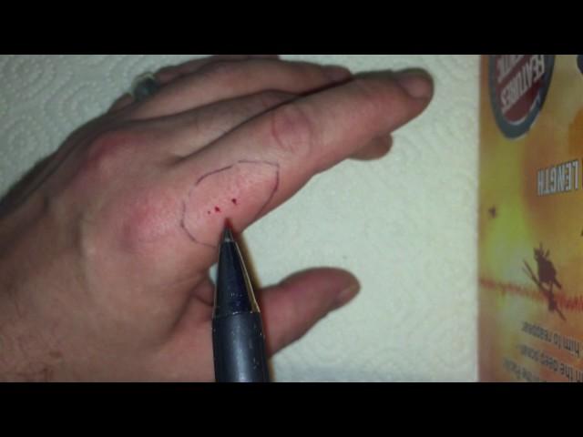 Spider Bite Test / Spinnenbiss Selbstversuch
