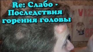 Re: Слабо - последствия горения головы