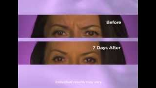 Botox Treatments - Available at Cavi Spa NY Thumbnail