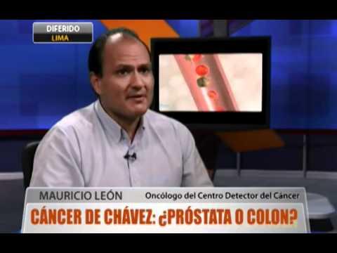 centro de cáncer de próstata de colón