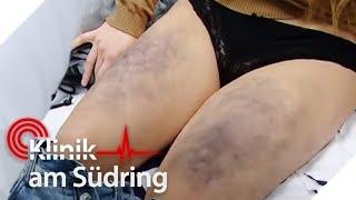 Mobbingopfer (17) verprügelt, weil sie keine Markenklamotten trägt? | Klinik am Südring | SAT.1 TV