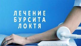 видео Как лечить бурсит локтевого сустава в домашних условиях