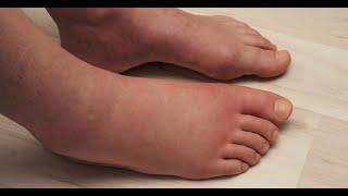 Les scientifiques expliquent 6 choses qui causent des jambes enflées et comment y remédier