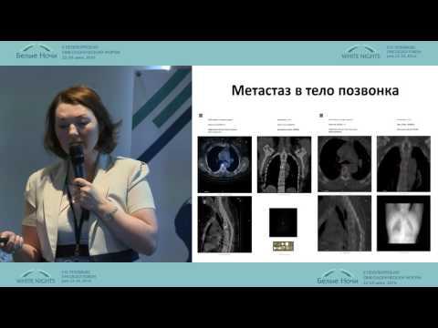 Роль радиойодтерапии в лечении рака щитовидной железы