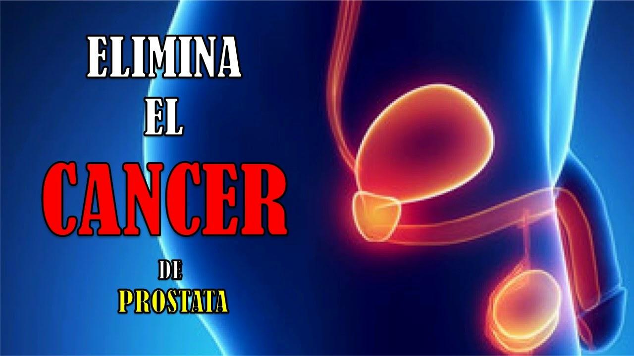 cantos para la curación del cáncer de próstata