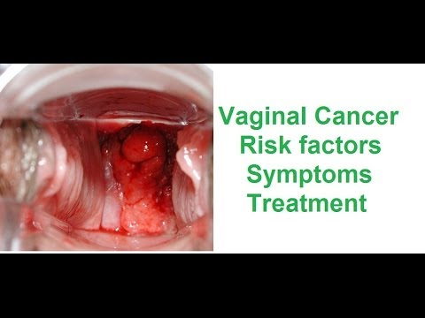 What are the symptoms of vaginal cancer