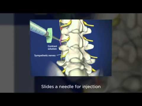 Dr. Kornick Riverside Spine Jacksonville Florida (904) 389-1010 Prolotherapy