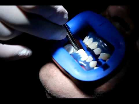 How is Laser Teeth Whitening Done - Teeth whitening in Toronto