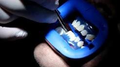 How is Laser Teeth Whitening Done - Teeth whitening in Toronto