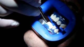 How Laser Teeth Whitening Done