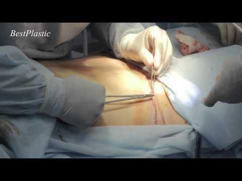 Как делают операцию на живот