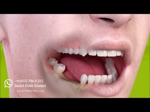 Çoklu diş eksikliklerinde dental implant uygulaması