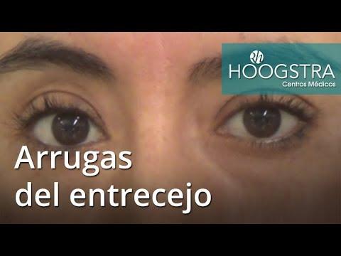 Arrugas del entrecejo (18054)