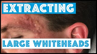 Acne Vulgaris and Extracting large Whiteheads - Part 1